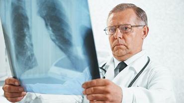 Zawał płuca to jedno z częściej występujących powikłań u osób z chorobami układu krążenia