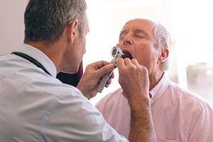 Rak języka: objawy, leczenie
