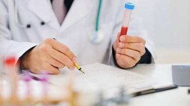Stężenie CRP określa się na podstawie badania krwi. Zaliczane jest ono do tzw. białek ostrej fazy. Jest to grupa aminokwasów, których stężenie zmienia się wraz z pojawieniem się w organizmie infekcji lub stanu zapalnego