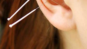 Akupunktura wskazana jest szczególnie podczas depresji oraz chorób kobiecych.