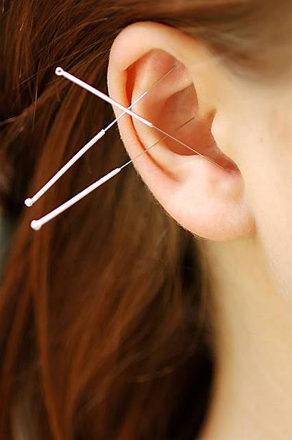 Akupunktura - na czym dokładnie polega, kiedy jest zalecana, a kiedy przeciwwskazana?