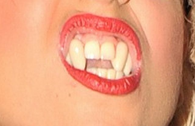 O dziwo nie kończą jej się pomysły, by zaskakiwać ludzi. Tym razem sprawiła sobie wampirze zęby, które wyglądały całkiem naturalnie. Znów utwierdzamy się w przekonaniu, że Lady GaGa nie jest normalna...