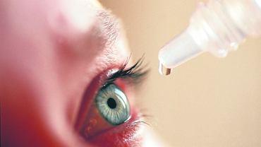 Lekarze przestrzegają przed nadużywaniem kropli obkurczających naczynia krwionośne, po jakie najchętniej sięgają pacjenci. Krople te są dostępne bez recepty i rzeczywiście po ich podaniu oko od razu wygląda lepiej, tyle że choroba nie mija