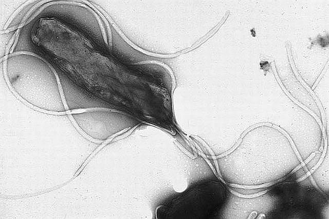 Helicobacter pylori, sprawca wrzodów żołądka