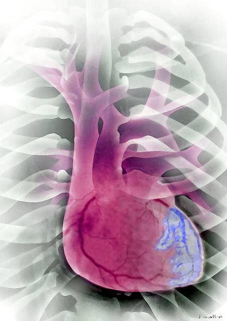 Migotanie przedsionków jest objawem, który towarzyszy wielu chorobom układu krążenia, np.: nadciśnieniu tętniczemu, chorobie wieńcowej, wadom serca.