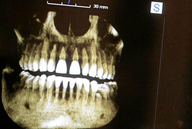 Do śmierci trzynastolatka mógł przyczynić się źle przeprowadzony zabieg dentystyczny