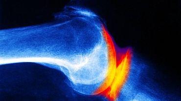 Staw kolanowy dotknięty chorobą zwyrodnieniową