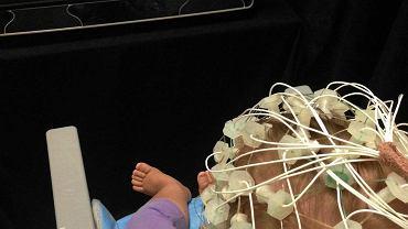 11-miesięczna Ada podczas badania EEG w warszawskim BabyLabie