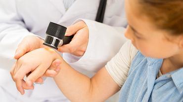 Co należy wiedzieć o znamionach barwnikowych u dzieci?