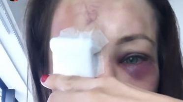 Karolina Kowalkiewicz opowiada o kontuzji oka