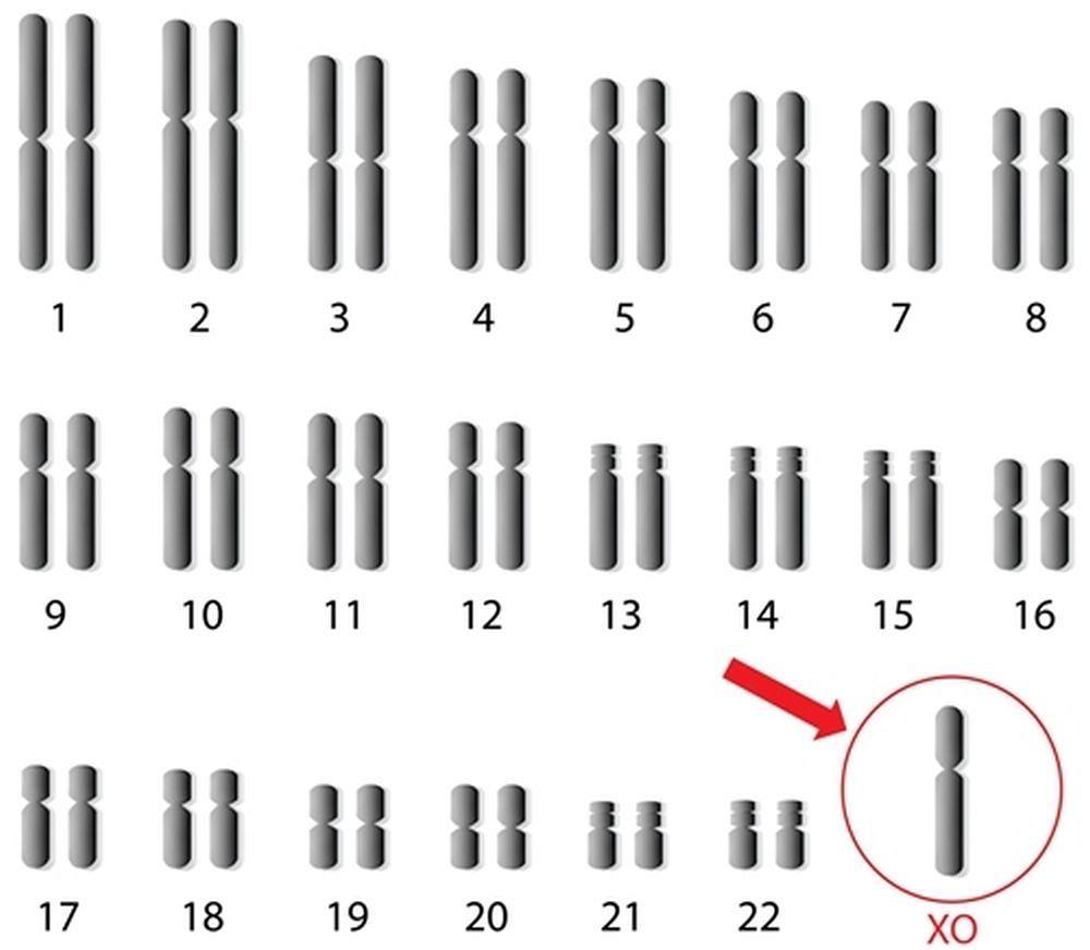 Zespół Turnera jest konsekwencją błędu genetycznego, do którego dochodzi podczas powstawania komórek rozrodczych bądź na bardzo wczesnym etapie rozwoju.