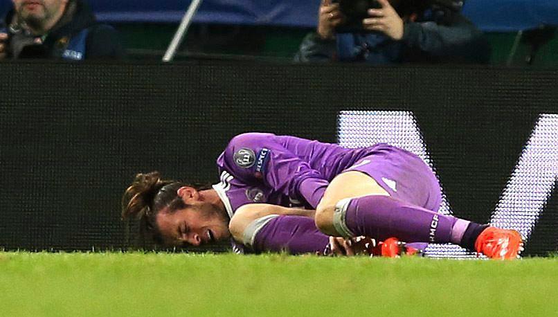Kontuzja Garetha Bale'a w meczu ze Sportingiem Lizbona