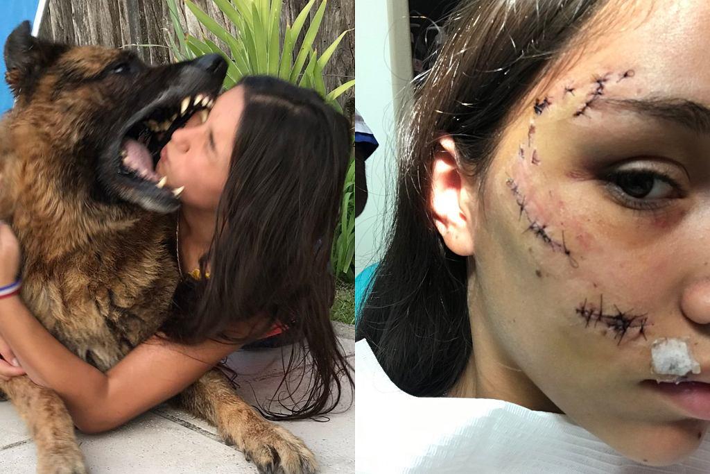 Lara Sanson pogryziona przez psa