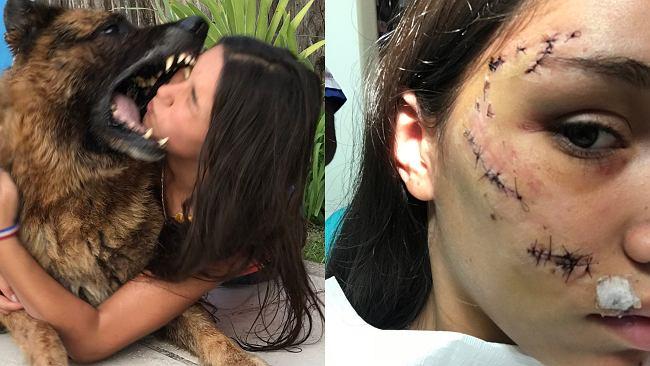 Nastolatka zrobiła sesję zdjęciową z psem. W pewnym momencie zwierzak ugryzł ją w twarz
