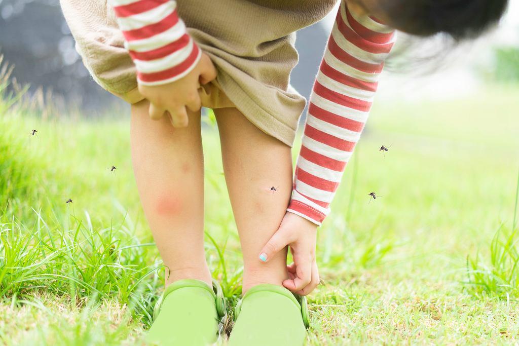 Sposoby na komary dla dzieci powinny być bezpieczne.