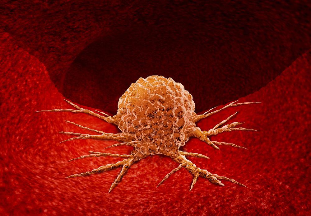 Nowotwór to nieprawidłowa tkanka, która powstaje z jednej komórki organizmu. To choroba o podłożu genetycznym, która jest procesem.
