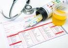 Białkomocz - nie musi oznaczać choroby nerek, ale to objaw, którego nie wolno lekceważyć