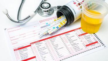 Obecność białka w moczu może zwiastować zatrucie, anemię lub chorobę immunologiczną