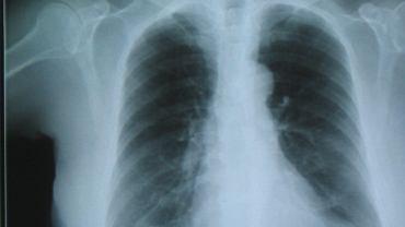 Zmiany w płucach (zdjęcie ilustracyjne)