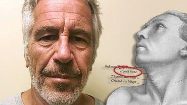 Jeffrey Epstein. Złamanie kości gnykowej