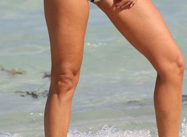 Joanna Krupa, nogi, mankamenty gwiazd, wady gwiazd, cellulit