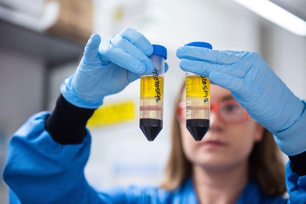 Testy szczepionki na koronawirusa na Uniwersytecie Oksfordzkim