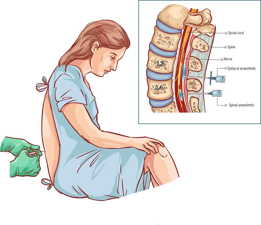 Znieczulenie podpajęczynówkowe jest mniejszym obciążeniem dla organizmu niż znieczulenie ogólne,