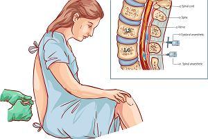 Znieczulenie podpajęczynówkowe - na czym polega i kiedy się je stosuje?