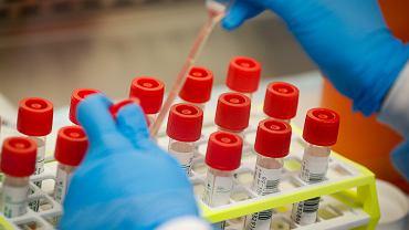 Koronawirus na świecie. Badania laboratoryjne