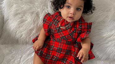 Ta dziewczynka wygląda jak lalka! Jeden szczegół w jej wyglądzie sprawił, że robi furorę na Instagramie