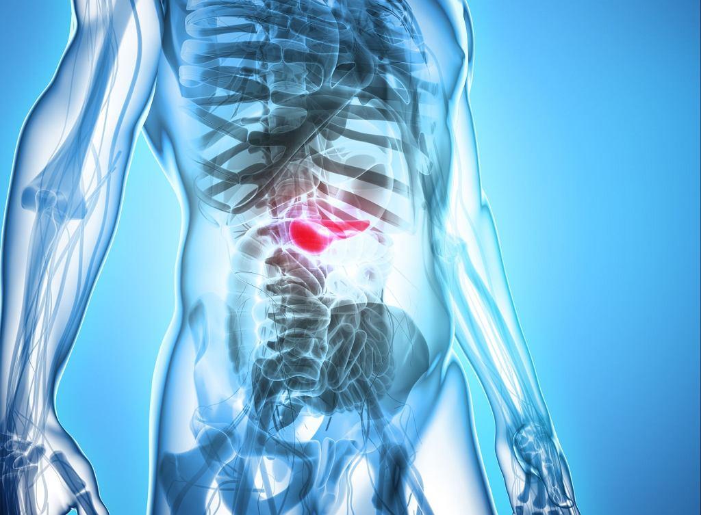 Nagły i silny ból brzucha jest jednym z objawów ostrego zapalenia trzustki.