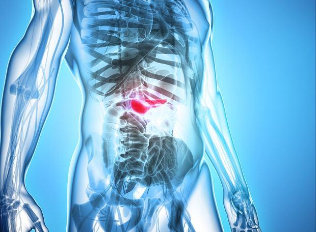 Ostre zapalenie trzustki - przyczyny, częste objawy, metody leczenia