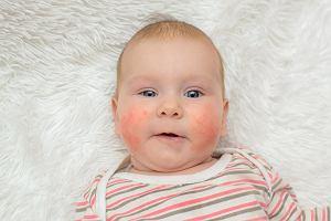 Czerwone policzki u dziecka - przyczyny, jak zapobiegać