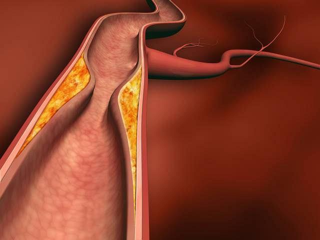Typowe dla choroby zmiany najczęściej pojawiają się w obrębie aorty oraz jej gałęzi