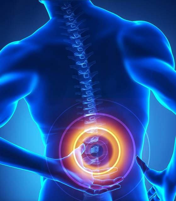 Wypadnięcie dysku to jeden z częściej diagnozowanych urazów kręgosłupa