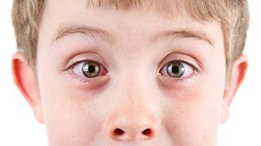 Podkrążone oczy u dziecka najczęściej są jednym z objawów chorób alergicznych, głównie alergicznego nieżytu nosa i alergicznego zapalenia spojówek.
