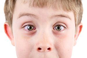 Podkrążone oczy u dziecka - najczęstsze i mniej typowe przyczyny