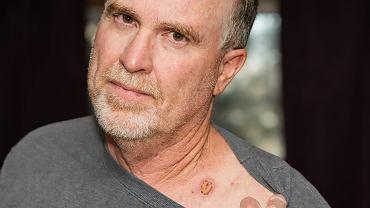 Ryzyko zachorowania na raka skóry rośnie wyraźnie z wiekiem.