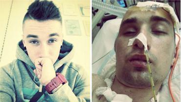 Albert Radomski został brutalnie pobity i przejechał po nim samochód
