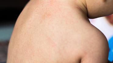 Trzydniówka to choroba, której cechą charakterystyczną jest wysypka, która zasięgiem nie obejmuje całego ciała