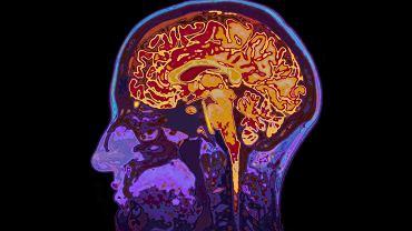 Mózg, a właściwie mózgowie odpowiada za kontrolowanie wielu ważnych funkcji organizmu