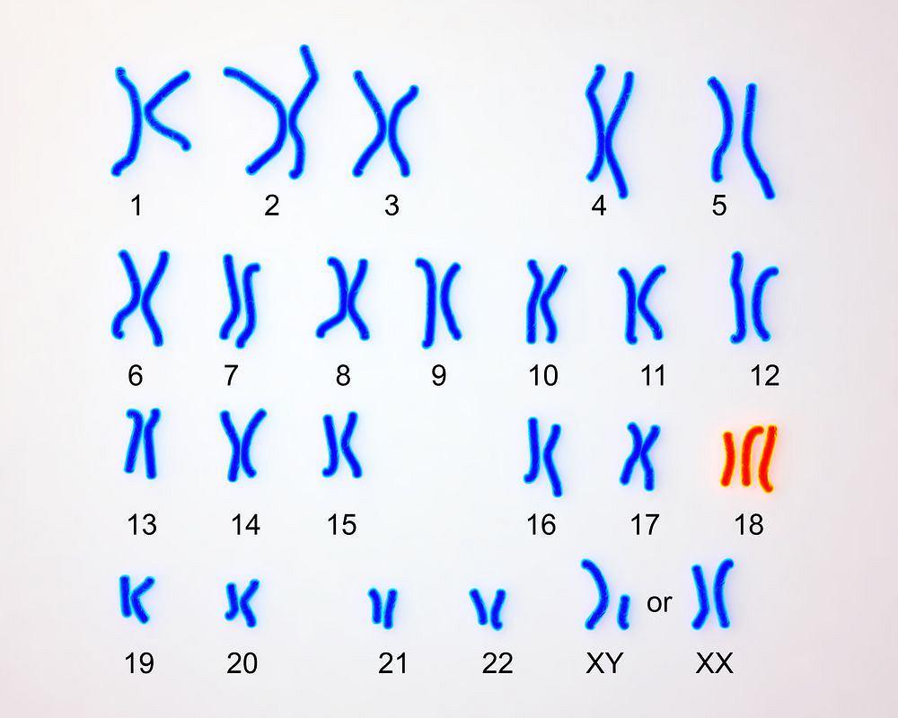 Zespół Edwardsa - dodatkowy chromosom w 18. parze.