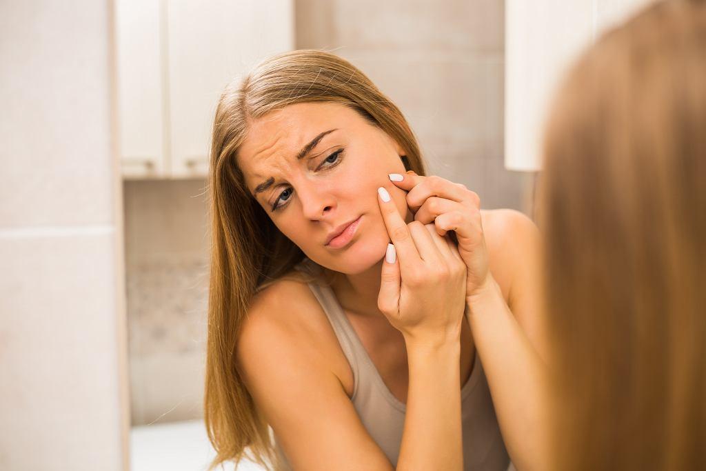 Wyciskanie pryszczy nie pomoże w walce z trądzikiem. Zdjęcie ilustracyjne