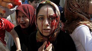 Ranne syryjskie kobiety stojące obok szpitala polowego na przedmieściach Aleppo