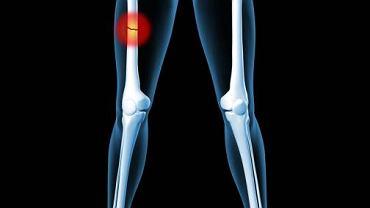 Do złamania kości udowej dochodzi najczęściej w trzech płaszczyznach i w zależności od miejsca, w którym doszło do uszkodzenia pojawiają się różne objawy
