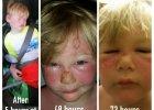 Trzylatek poparzył się do ran i bąbli mimo filtra 50 UVB. Jak to możliwe? [4 WAŻNE PYTANIA O OPALANIE]