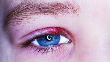 Jęczmień na oku u dziecka pojawia się często - to wyczuwalny i widoczny grudkowy ropień. Owo małe zgrubienie na brzegu powieki powstaje wówczas, gdy gruczoły, których ujście znajduje się właśnie na brzegach powiek, przestaną prawidłowo funkcjonować albo pojawi się w ich obrębie stan zapalny