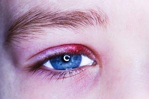 Jęczmień na oku u dziecka - przyczyny, objawy, leczenie