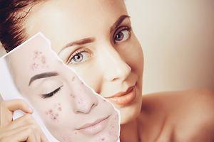 Dermokosmetyki - kosmetyki dla skóry atopowej i nadwrażliwej