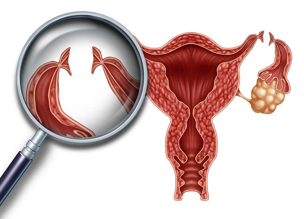 Podwiązanie jajowodów jest zabiegiem zamykającym drożność kobiecych jajowodów, którymi komórki jajowe są transportowane z jajników do macicy